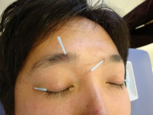 Beauty face acupuncture